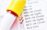 ) A/B형 간염 검사 관련 이미지