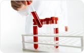 혈액형 검사 관련 이미지